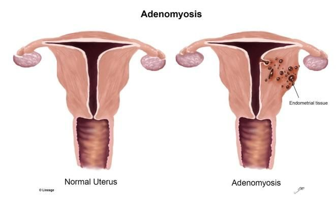 Medical diagram of Adenomyosis