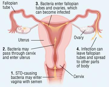 Medical diagram of Pelvic Inflammatory Disease