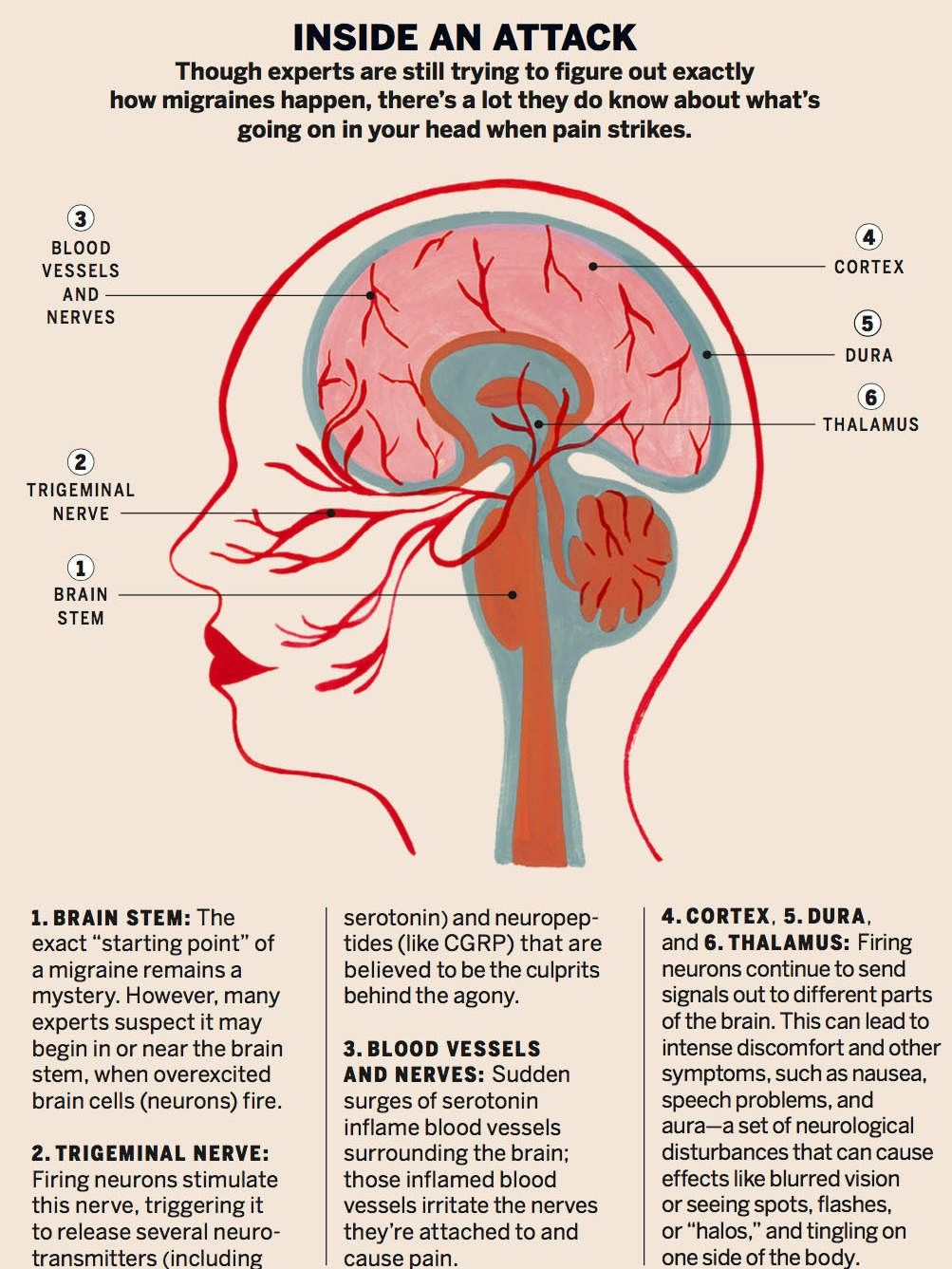 Image of an illustrated head diagram including Brain stem, Trigeminal nerve, blood vessels, cortex, Dura and Thalamus