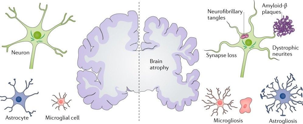 image: illustration of brain atrophy elements