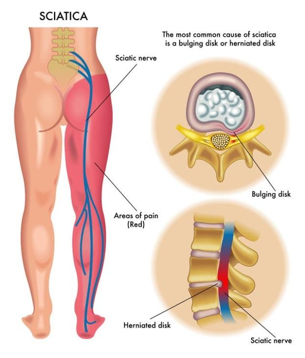 illustrated medical diagram of sciatica