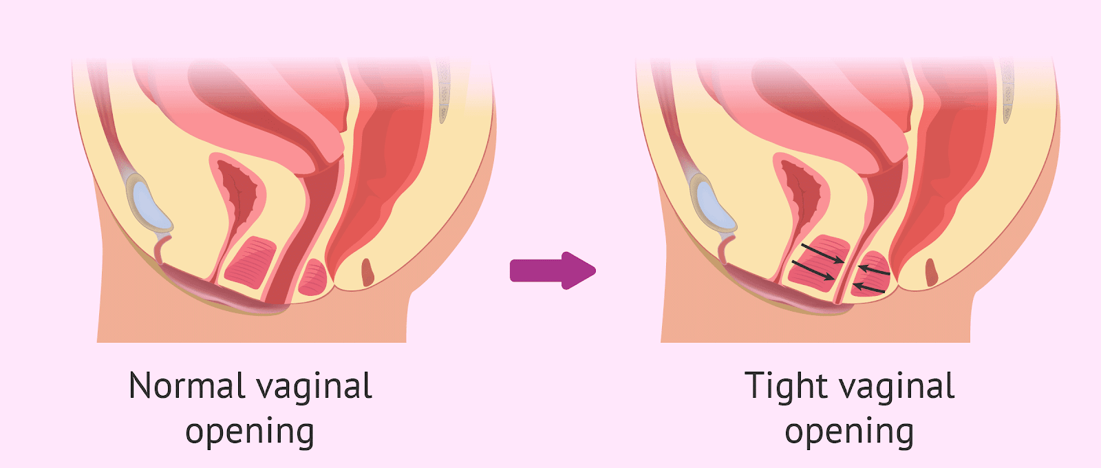 Medical diagram of Vaginismis