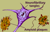 An unhealthy neuron