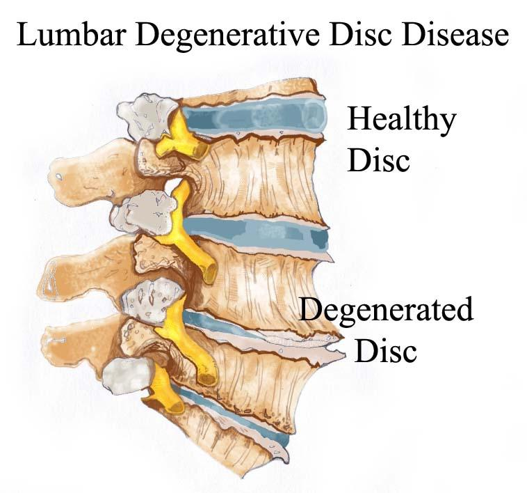 close up of a spine with a healthy compared to a degenerated disc